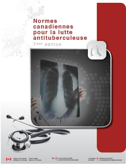 Normes canadiennes pour la lutte antituberculeuse - 7ième édition Image