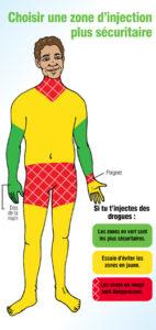 Choisir une zone d'injection plus sécuritaire [Carte-portefeuille] Image